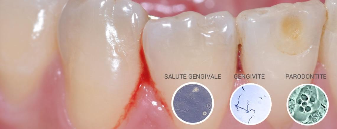 parodontologia torino novita