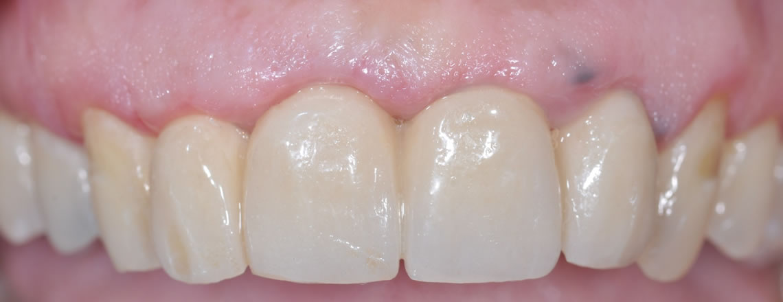 parodontologia torino gengiva sanguinanti